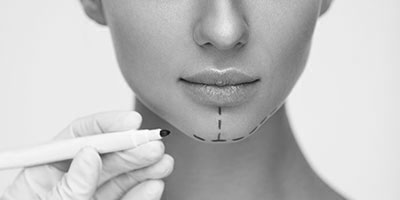 cosmetic surgery lines drawn on womans chin